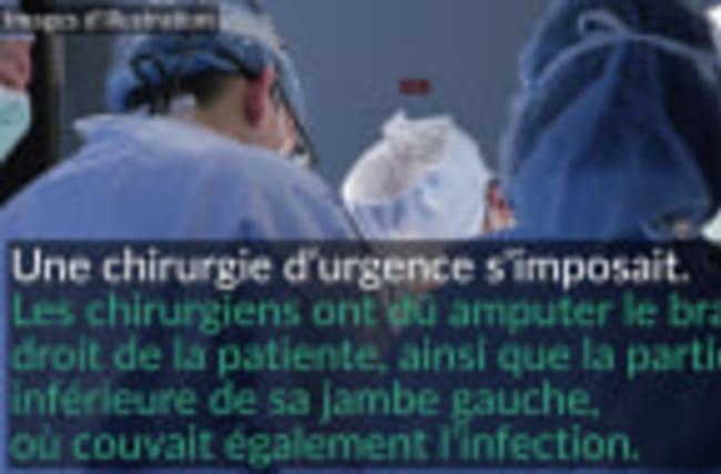 Amputation à cause d'une bactérie