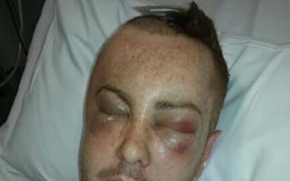 Family release hit-and-run injury images in a bid to catch driver