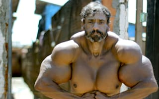 Bodybuilder's supersized fake muscles could kill him