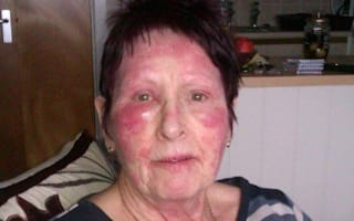 Woman's face blistered after using anti-wrinkle cream
