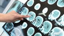 Implantes ultrasónicos para atacar mejor los tumores cerebrales