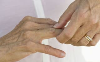 Five myths about arthritis