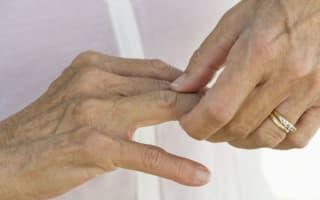 Five myths about arthritis