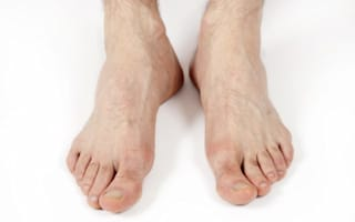 Seven foot problems that can signal something serious