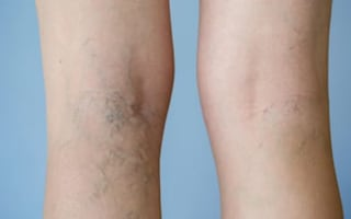 Varicose veins? See the treatments options available