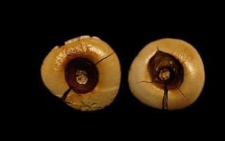 13,000-year-old teeth reveal dental fillings were torture back then