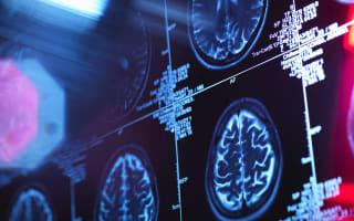 Six surprising things that increase dementia risk