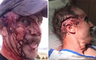 Man survives two bear attacks in one day