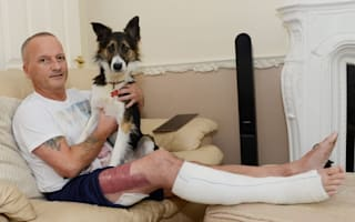 Dogwalker suffers horrific injuries after 'pebble' from beach explodes