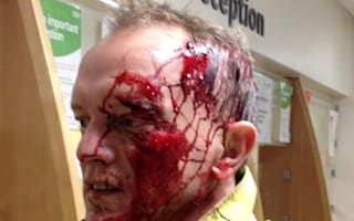 Cyclist circulates images of horrific injuries sustained after hitting giant pothole