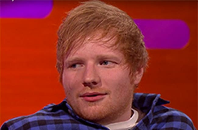 Ed looks seriously uncomfortable after asked about his scar