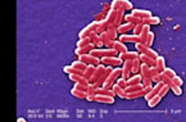 """Nightmare"" superbug arrives in U.S."