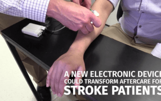 This device could transform treatment for stroke patients