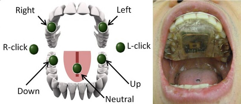 Magnetic retainer lets you operate machinery with your tongue, gives linguistics new meaning