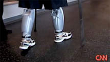 Bluetooth-equipped prosthetic legs help double amputee walk again