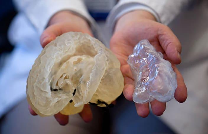 Boston Children's Hospital preps surgeons with custom 3D-printed models