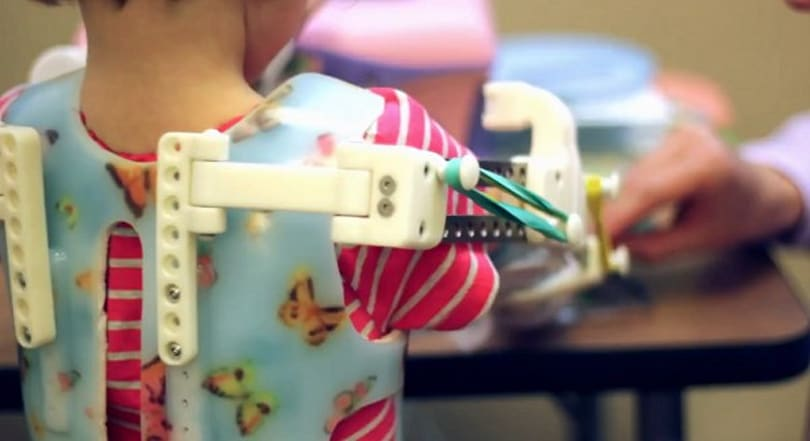 3D printed 'Magic Arms' give a little girl use of her limbs