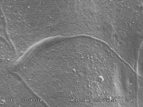 This 50-million-year-old worm sperm is a scientific treasure