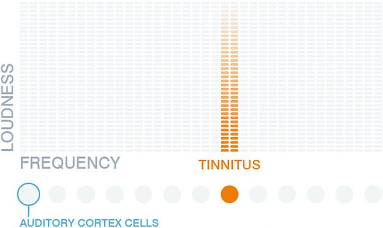 A new audio app claims to treat tinnitus
