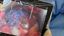 Fraunhofer iPad app guides liver surgery through augmented reality