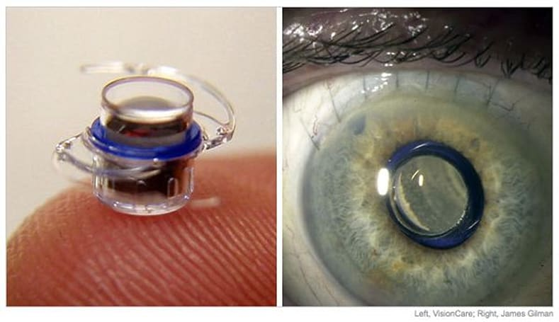 Telescopic eye implant approved by the FDA