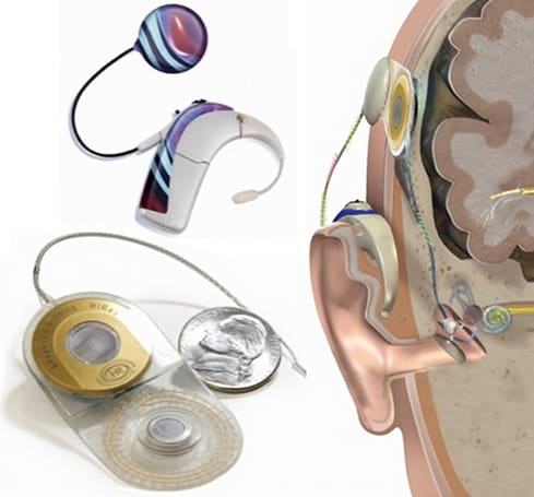 Harmony HiResolution Bionic Ear System gets FDA nod