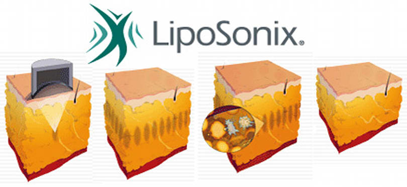 LipoSonix aiming for non-invasive body sculpting