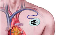 World's first 'wireless' pacemaker talks to your doctor daily, whether you like it or not (though you probably do)
