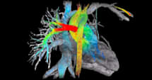 GE researchers invent a 7-dimensional heart scanner
