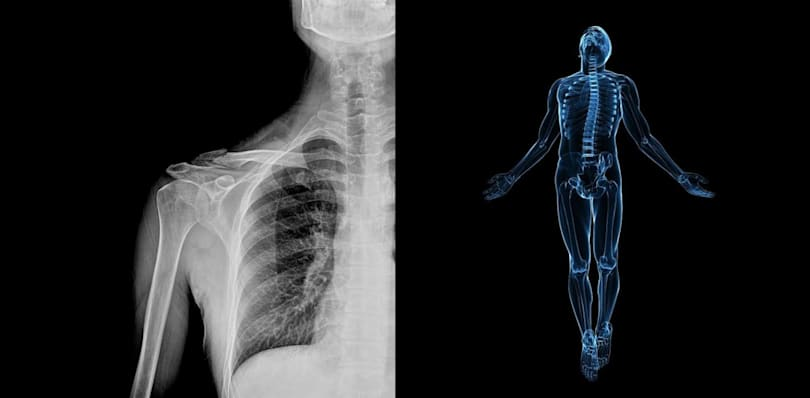 AI 'doctors' will diagnose your X-rays