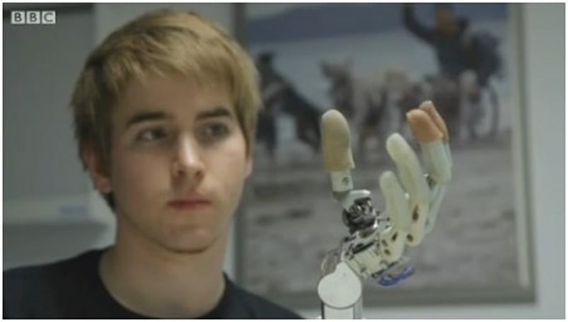 BBC shows us what it's like to live with a bionic hand