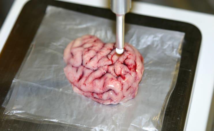 High-tech scalpel makes brain surgery less risky