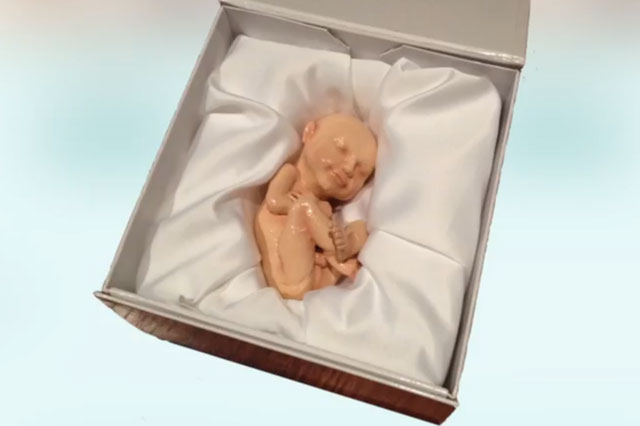 3D printed model of unborn baby