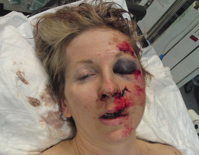 Jane Lowe after she was attacked