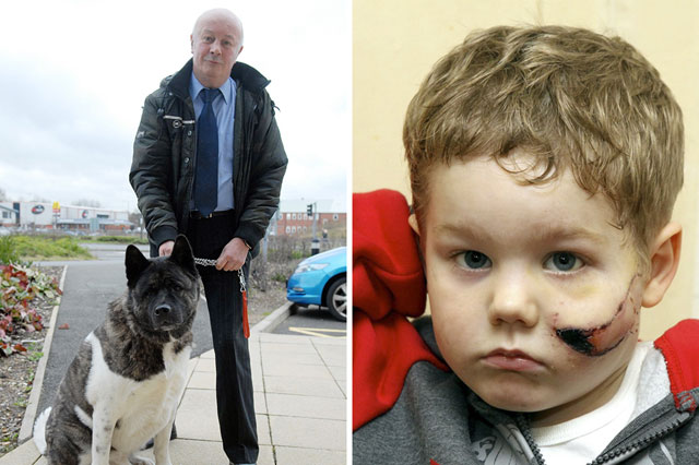 Trafford-James Jackson-Poole  who was attacked by a dog