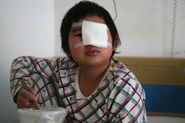 Boy blinded