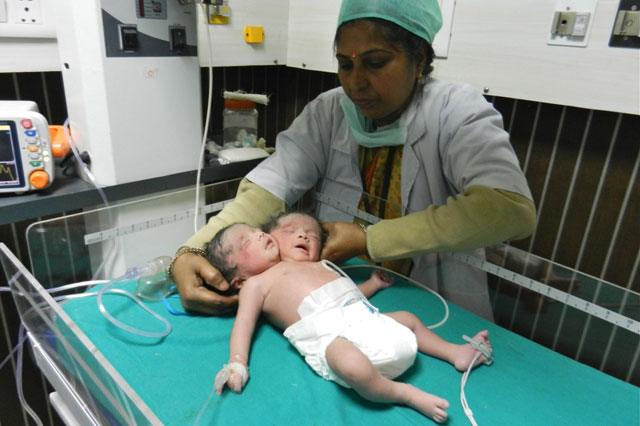 Indian baby born with two heads, conjoined twins