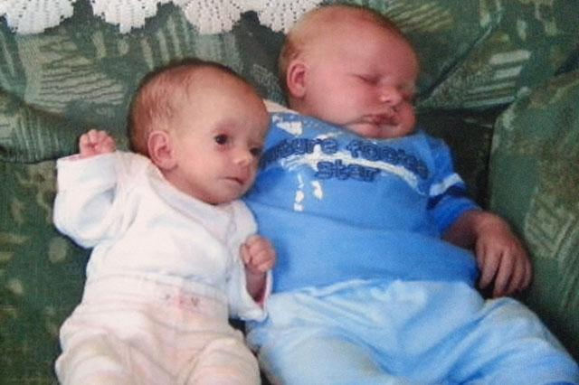 Primordial Dwarfism Baby Rare Dwarfism Conditio...