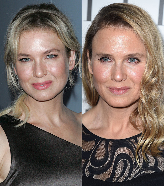 Did Renee Zellweger get plastic surgery? The truth behind her new face