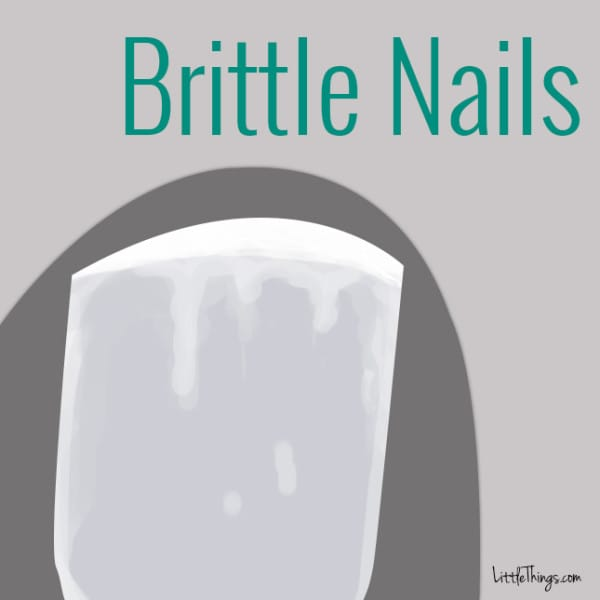 Causes of brittle nails awesome nail - Easy home remedy strengthen dry brittle nails ...