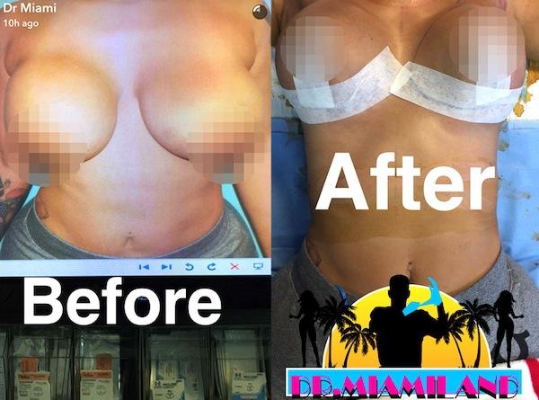 snapchat surgeries, snapchat plastic surgery, graphic snapchat videos