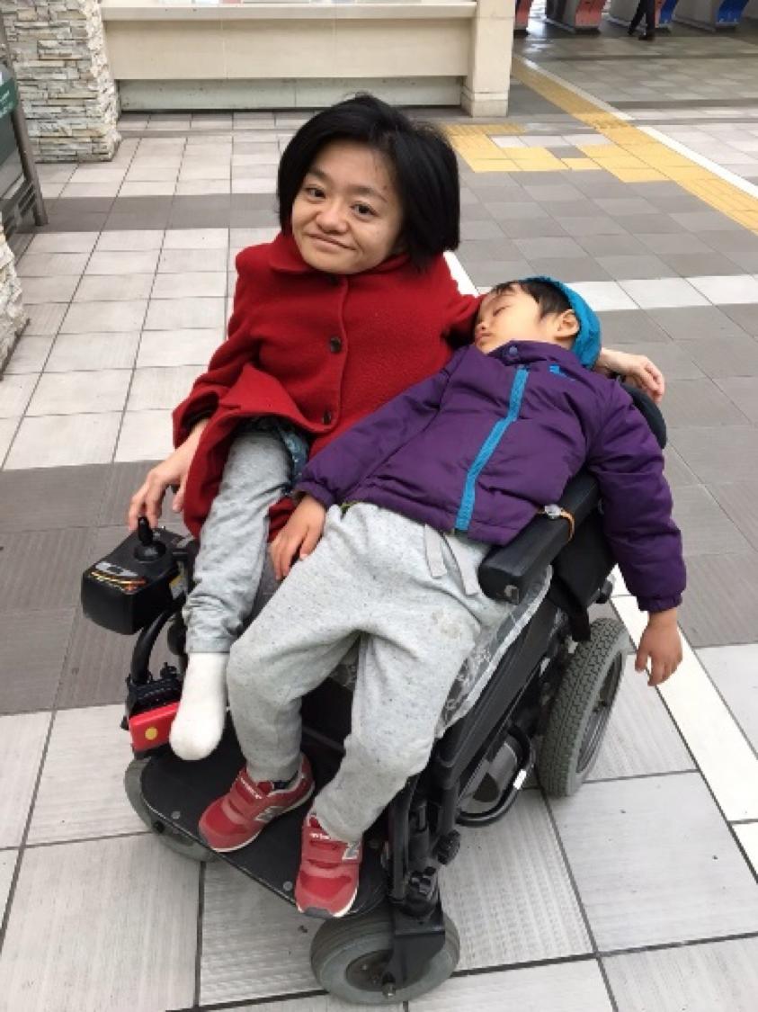 遺伝性の難病を患っているのに2人の子を産んだ女さんがすごい  [563844441]->画像>12枚