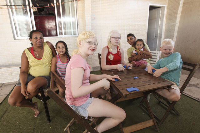 black mum white children brazil albinism