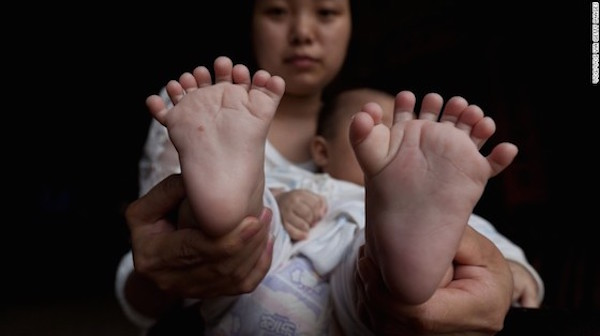 Chinese kid born with 31 fingers and toes