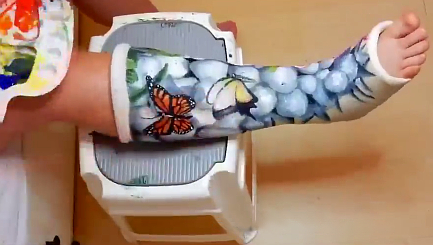 Teenager turns her plaster cast into work of art