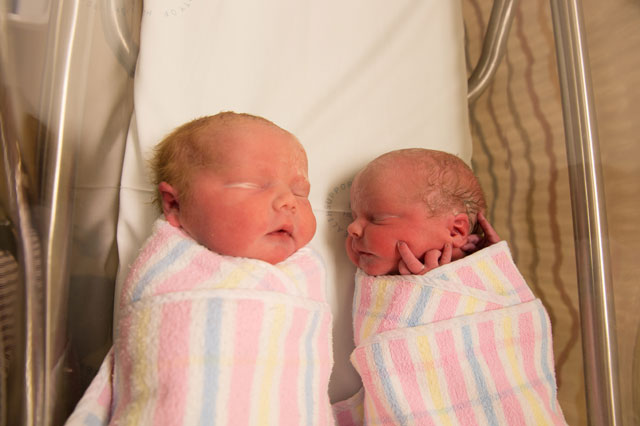 Women delivers her own twins during 'maternal assisted caesarean'