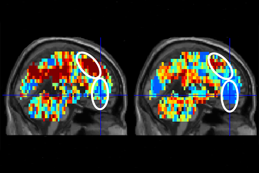 """On the left is the brain activation pattern for """"death"""" in participants who had made a suicide attempt. The image in the right depicts the activation pattern for """"death"""" in control participants."""