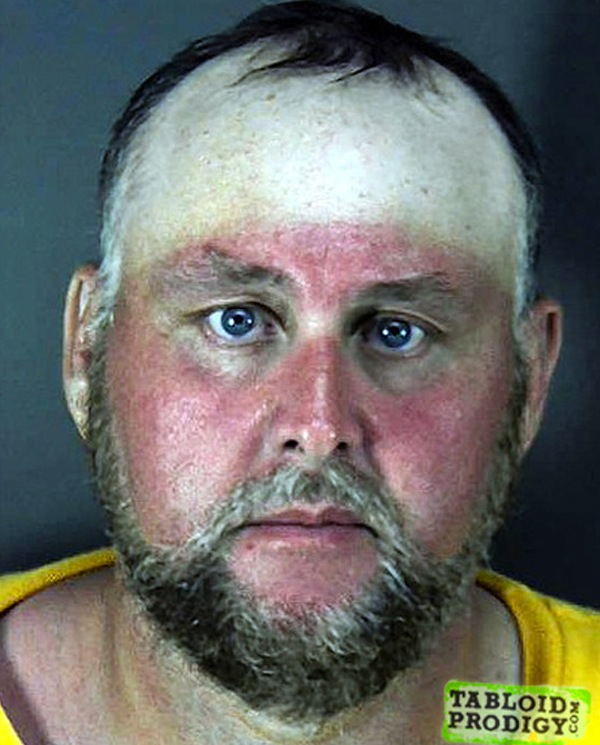 funny sunburns, worst sunburns, hat sunburn mug shot