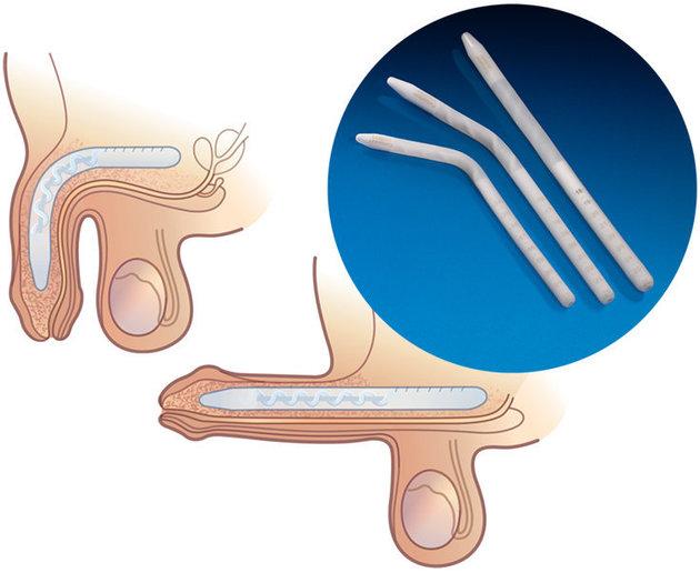 protesis peneanas externas