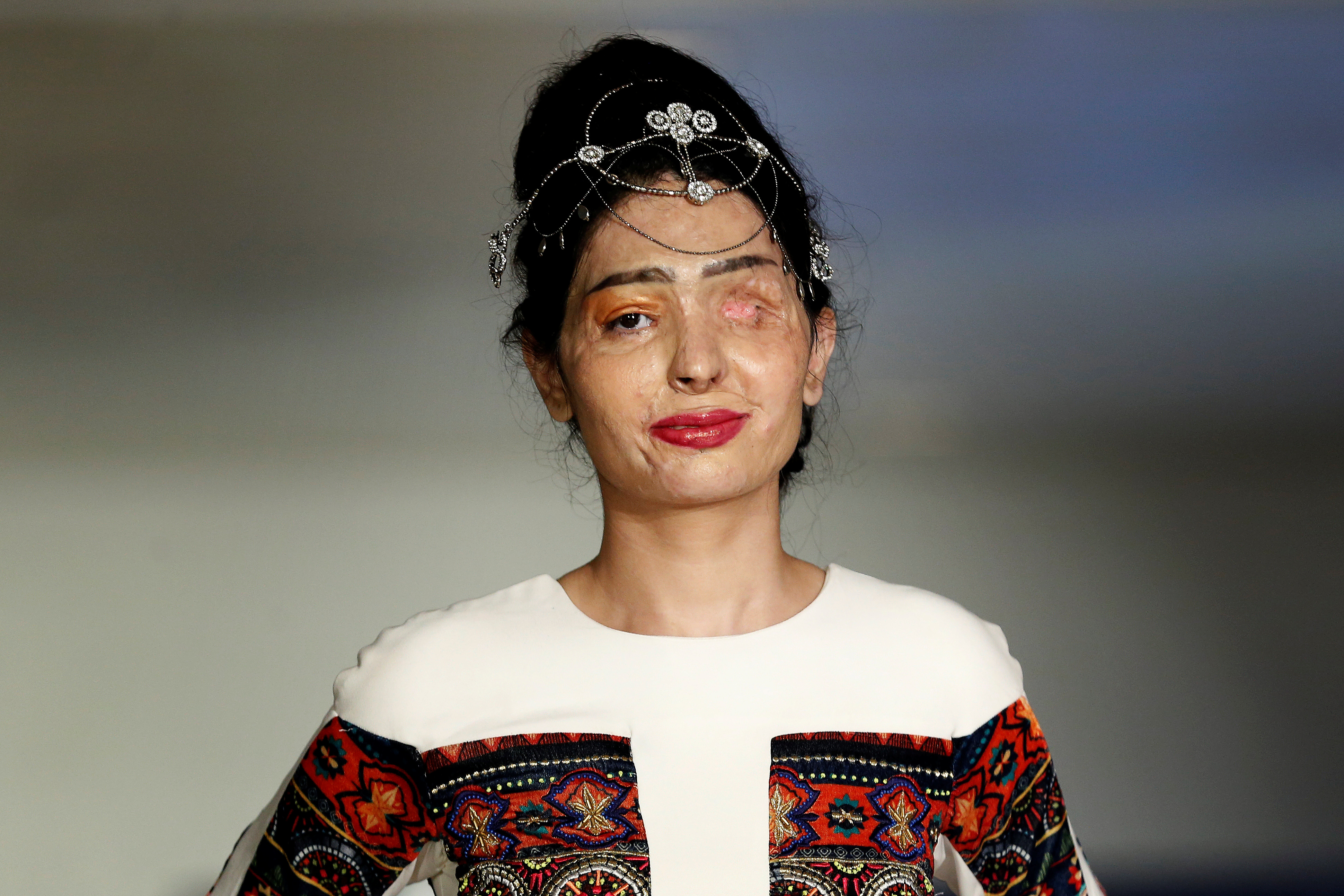 Acid attack survivor reshma qureshi steals the show at new for Modeling jobs nyc